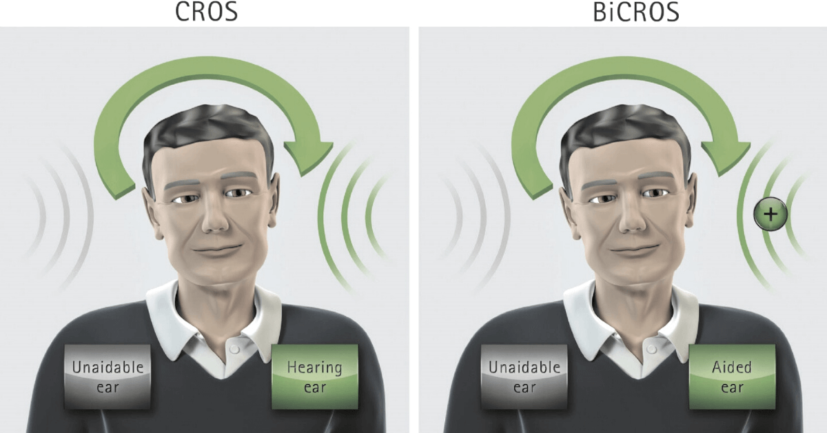 difference between cros and bicros hearing aids