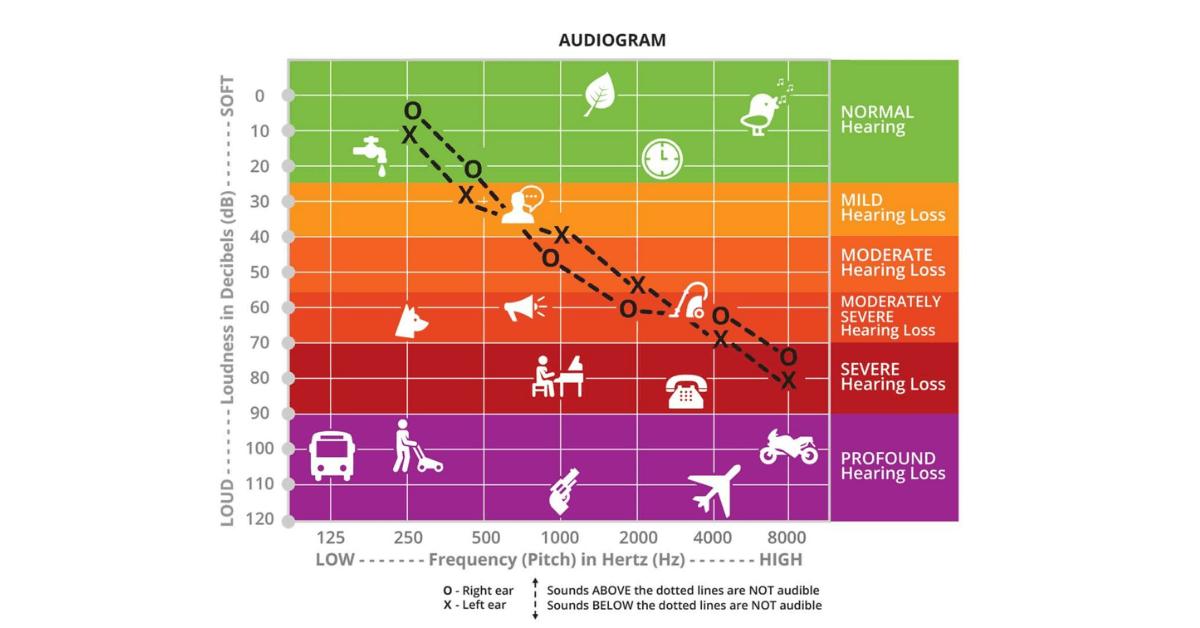 hearing loss range chart