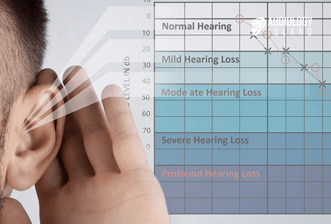 what is an audiogram