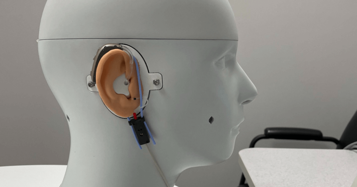 when is hearing aid customization required